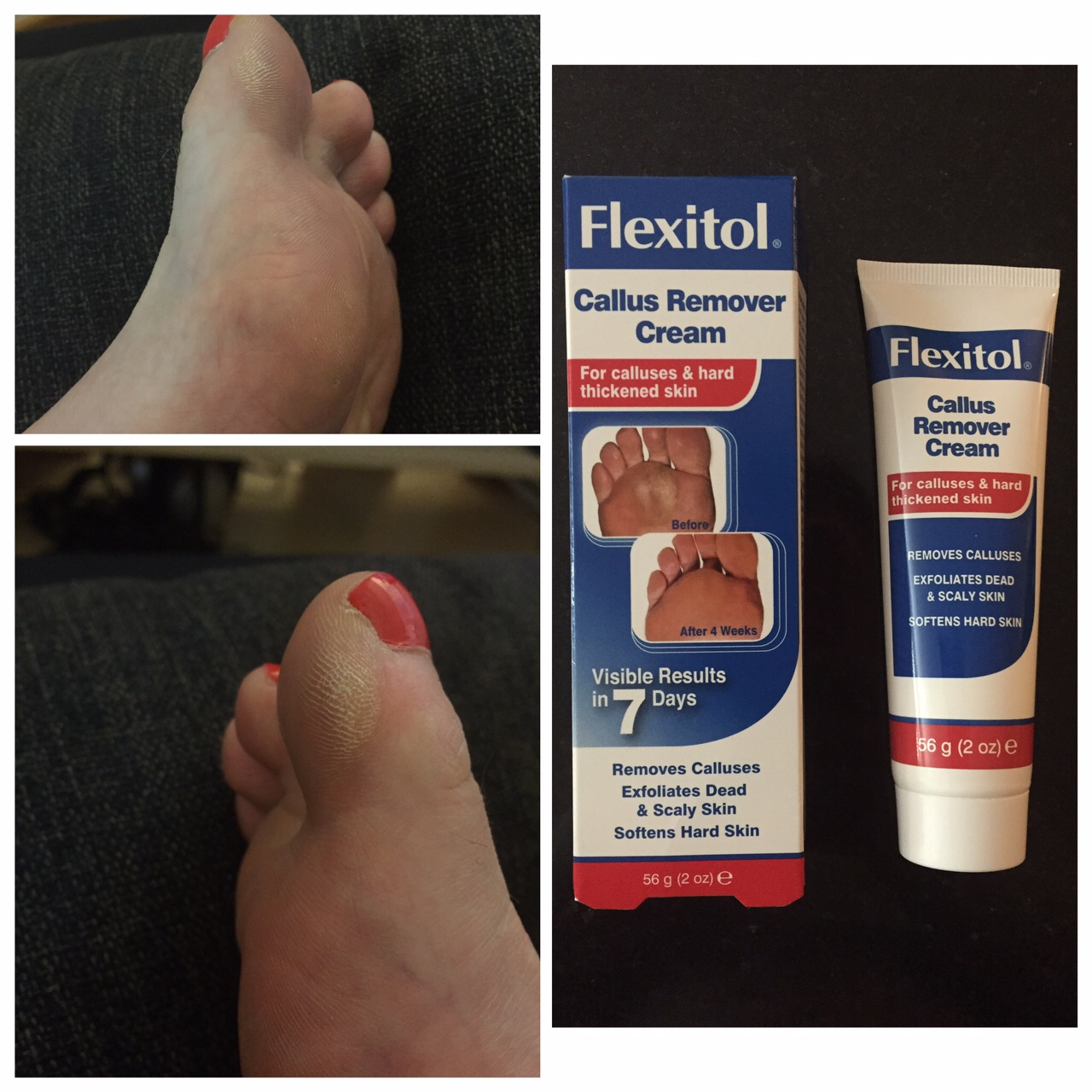 Review: Flexitol Foot Cream